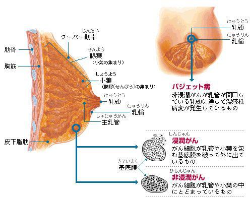 ステージ 2b 乳がん 乳がんステージ2の完治を目指す治療を医師が解説!生存率をもっとあげる工夫とは?